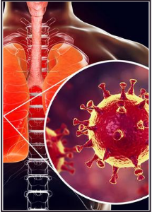 Covid-19, Post-Covid Syndromes, & ME/CFS